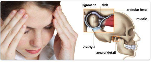 TDM Treatment