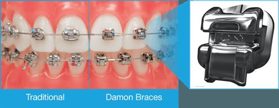 Damon braces description