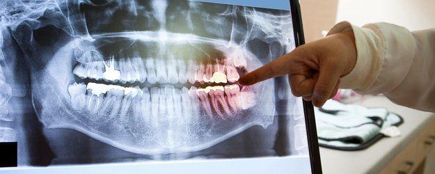 General Dentistry   Dental Exams   Big Lake, MN