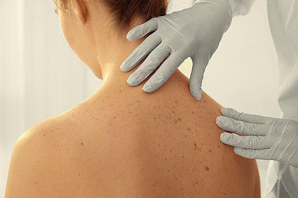 A Comprehensive Dermatology Center   Skin Treatment Troy MI