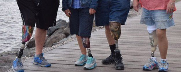 Northern Orthotic and Prosthetic Center Appointments Duluth