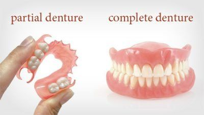 Tooth Replacement Dentures Philadelphia Pa