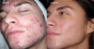 Treatment of Inflammatory Acne