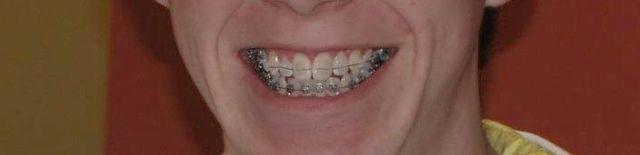 Braces Treatment Mason, Lebanon, Maineville Ohio| Dental