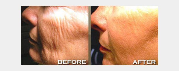 Before and after images of Skin Rejuvenation