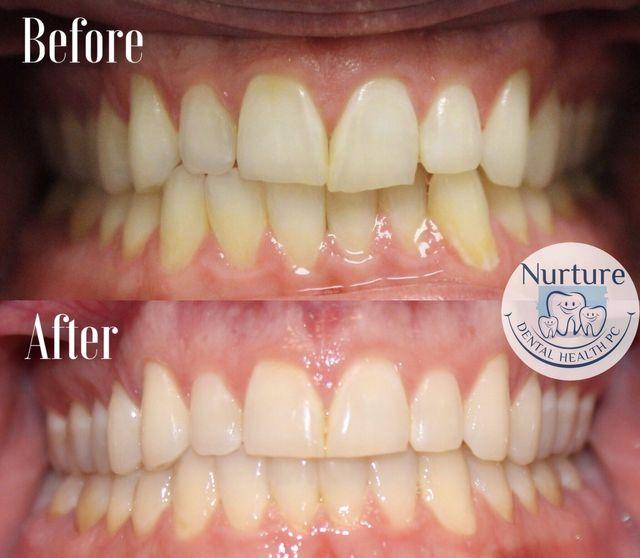 Cosmetic Dentistry & Dental Whitening Allentown