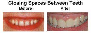 Closing Spaces Between Teeth