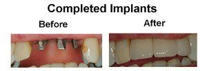 Completed Implants