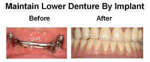 Maintain Lower Denture by Implant