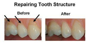 Repairing Tooth Structure