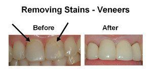 Removing Stains