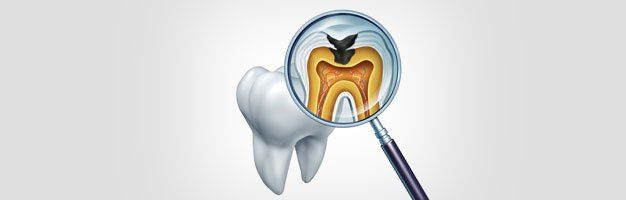 Dental Care | Fillings and X-Rays | Dayton, OH