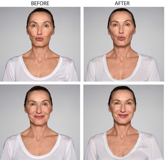 Restylane Refyne | Injectable Skin Treatments | Sunset Beach, CA