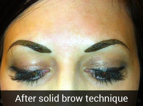After solid brow technique