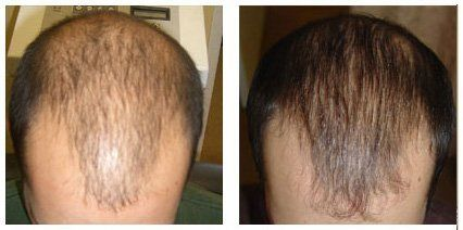 Before-and-after-hair-regrowth