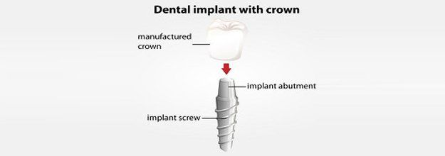 Dental implant with crown