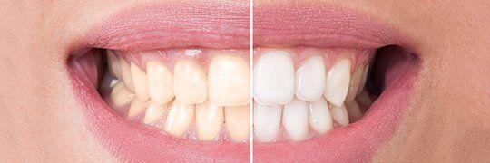 Teeth whitening programs