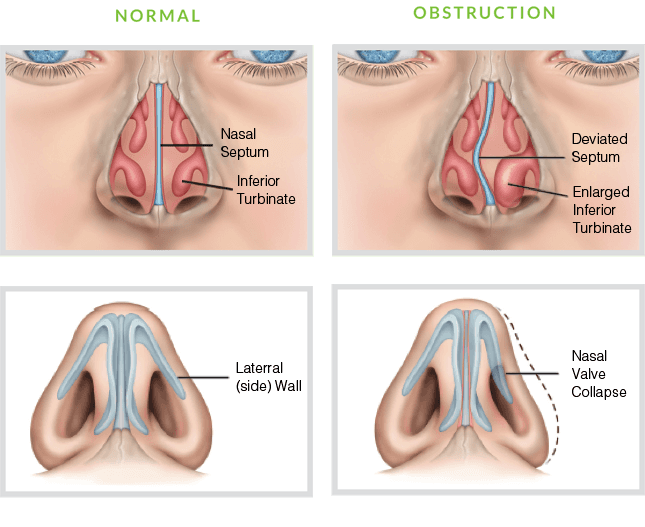 Balloon Sinuplasty Sinus Dilation Villa Rica Ga