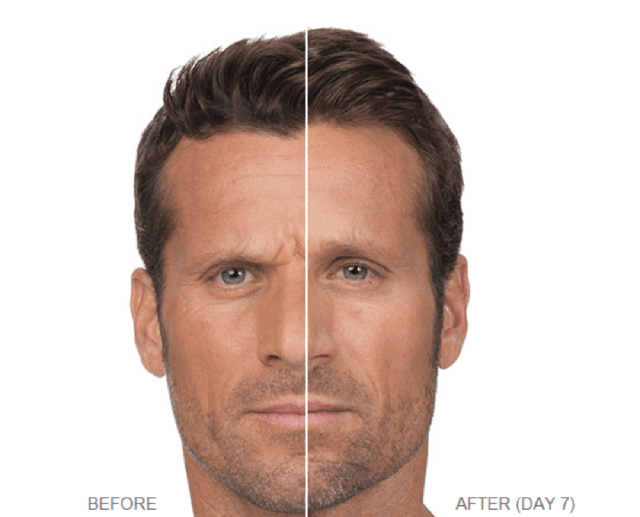 visibly reduce or remove sagging skin wrinkles and lines on your face with our botox and dermal fillers