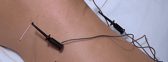 Electrode acupuncture