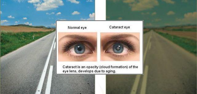Cataract Faqs Family Eye Care Of Woodstock And Lake Geneva Ltd