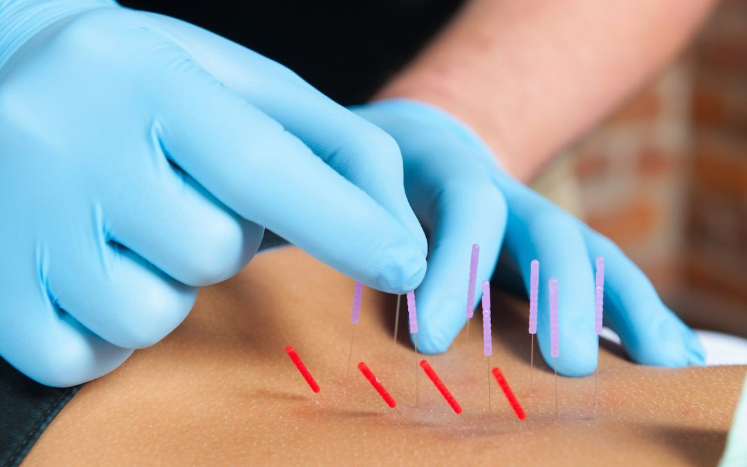 Brief Guide To The Dry Needling Method