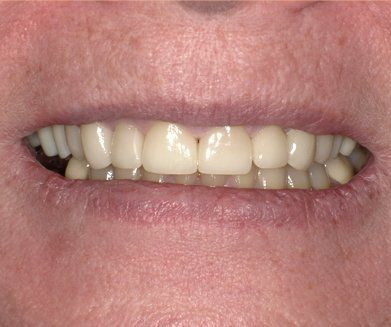 Maxillary (upper) arch rehabilitation to lengthen and whiten teeth After