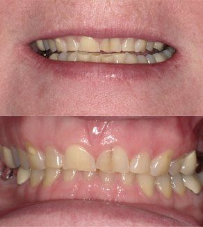 Maxillary (upper) arch rehabilitation to lengthen and whiten teeth Before