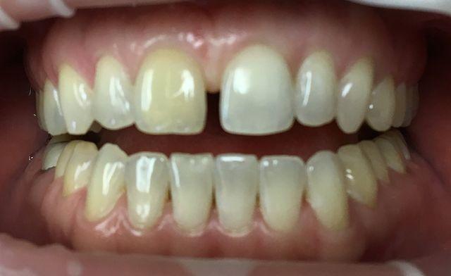 Diastema closure using porcelain veneers Before