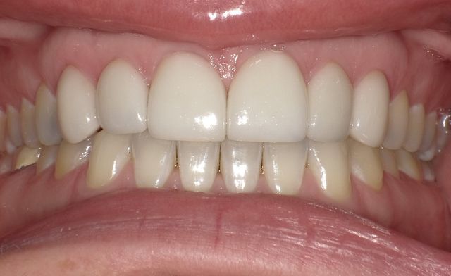 Diastema closure using porcelain veneers After