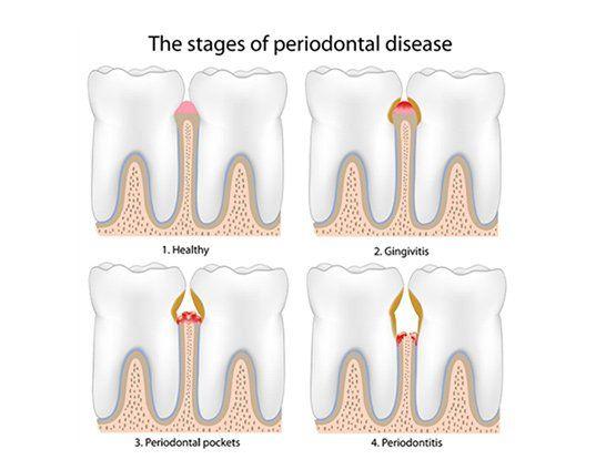 Periodontal Disease Bleeding Gums Treatment Laguna Hills