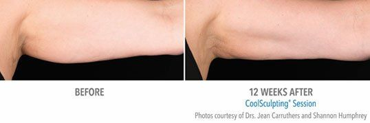 CoolSculpting - Arms - before/after