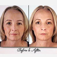 Restylane Lyft® Before and After