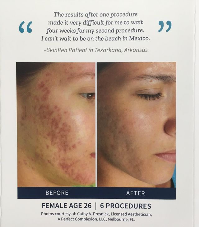 Microneedling   Acne Scar Treatments   Decatur, IL
