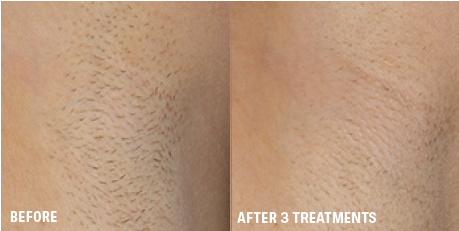 Laser Hair Removal Body Hair Removal Grand Forks Nd